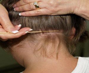 arlington-wa-lice-clinic